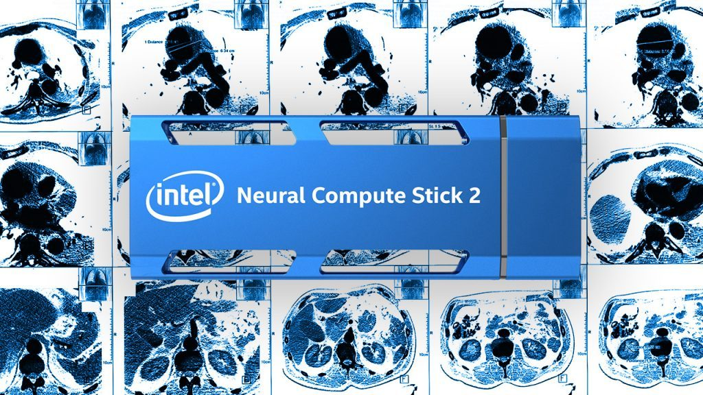 Intel® Neural Compute Stick 2 for Medical Imaging