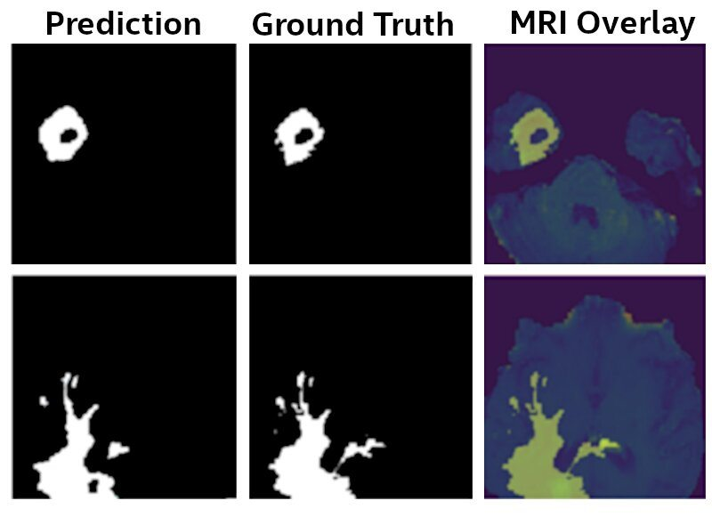 Figure 3: U-Net Model results. The final model identifies Glioma brain tumors from MRI scans with 99% of the accuracy as a model that was trained by sharing the raw MRI data, as provided by the BraTS initiative [6-9].