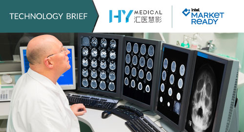 AI enabled medical imaging