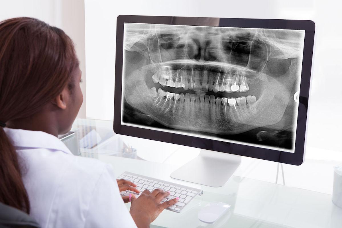 female dentist computer xray