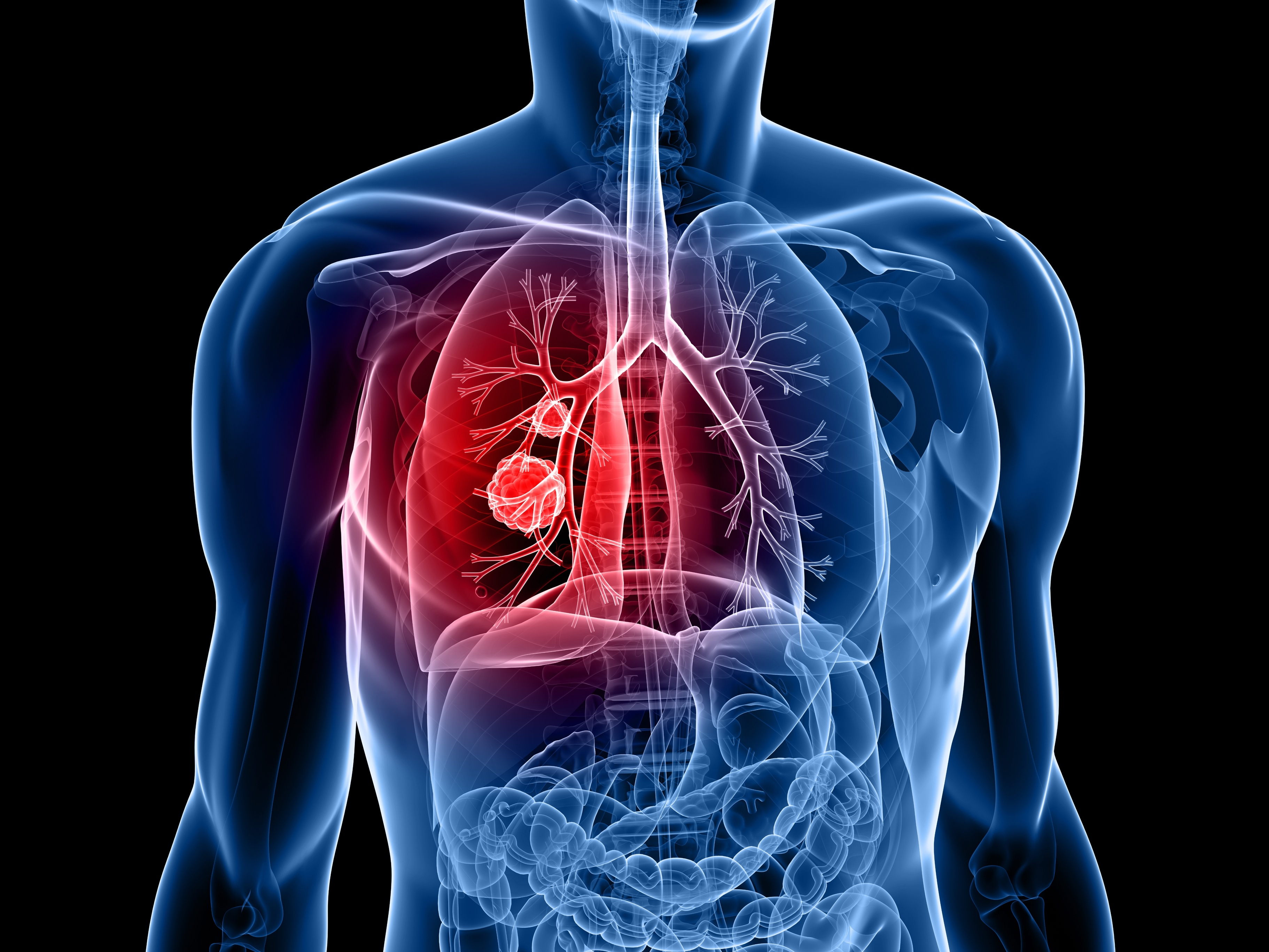 Intel and Alibaba Cloud hold AI contest for early lung cancer detection technology