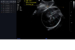 Samsung Medison's LaborAssist ultrasound image shows a fetus'